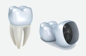 dental crowns Bondi Beach