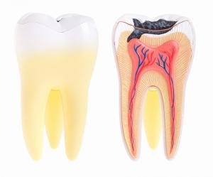Bondi Dental | Dental Abscess | Dentist Bondi