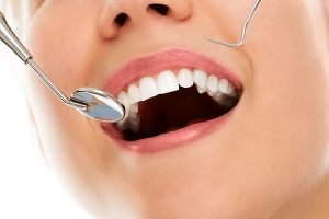 Bondi Dental | Tooth Fillings | Dentist Bondi