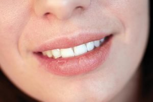 Dry Mouth Causes Remedies and Treatment | Dentist Bondi