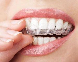 Six Incredible Invisalign Tips and Tricks at Bondi Dental