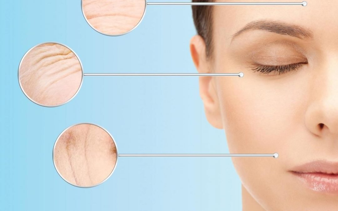 Anti Wrinkle Injections in Bondi: Should You Shop Around?