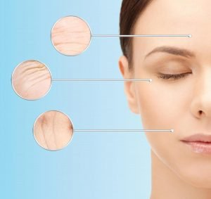 anti wrinkle injections in bondi should you shop around