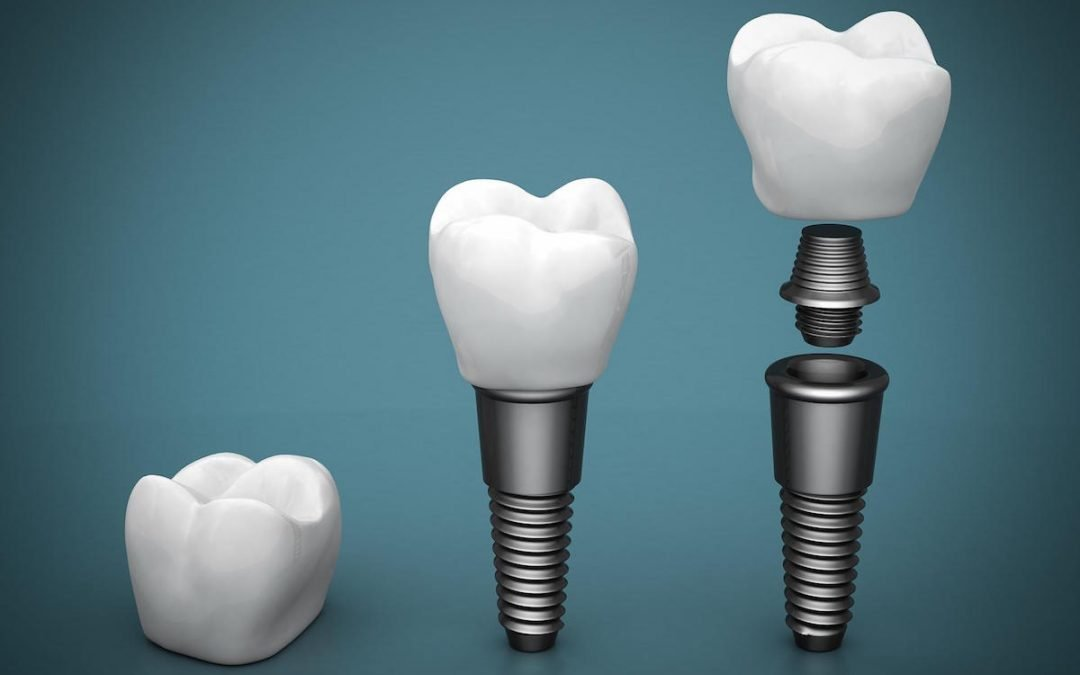 Guide on Dental Implants: What Dental Implant Is Right For Me?