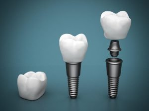 What Dental Implant Is Right For Me