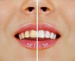Bondi Dentist Tips Over-the-Counter vs Professional Teeth Whitening