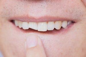 broken tooth emergency bondi