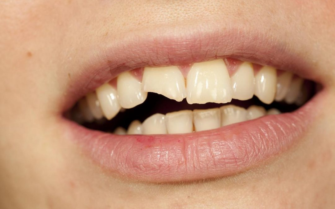 I Chipped My Dental Implant – Is It Serious? What Can I Do?