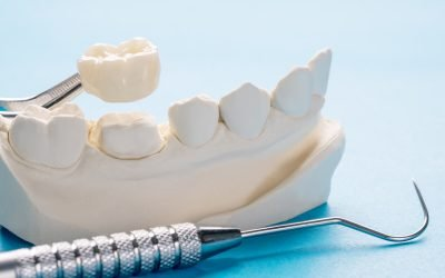 How Long Will Dental Crowns Last? Answers from Bondi Dental